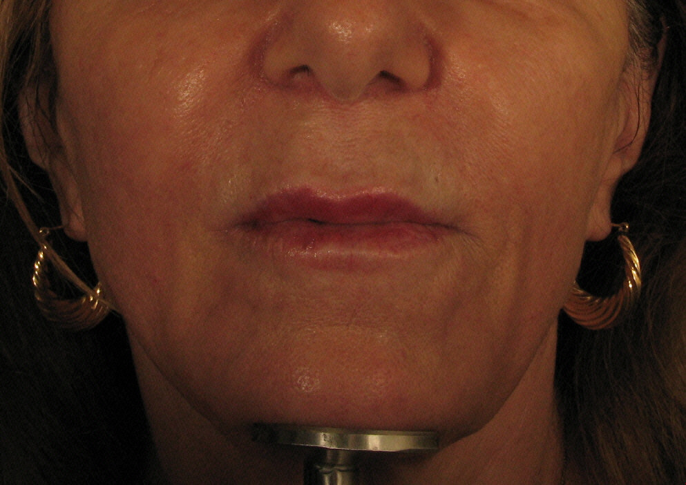 After Scultra Treatment.