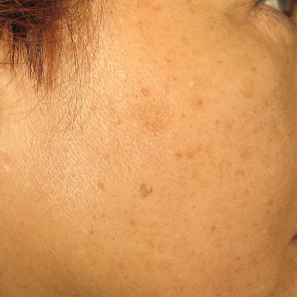 before Age Spot Treatment