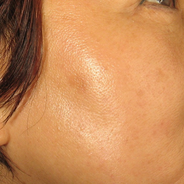 After Age Spot Treatment