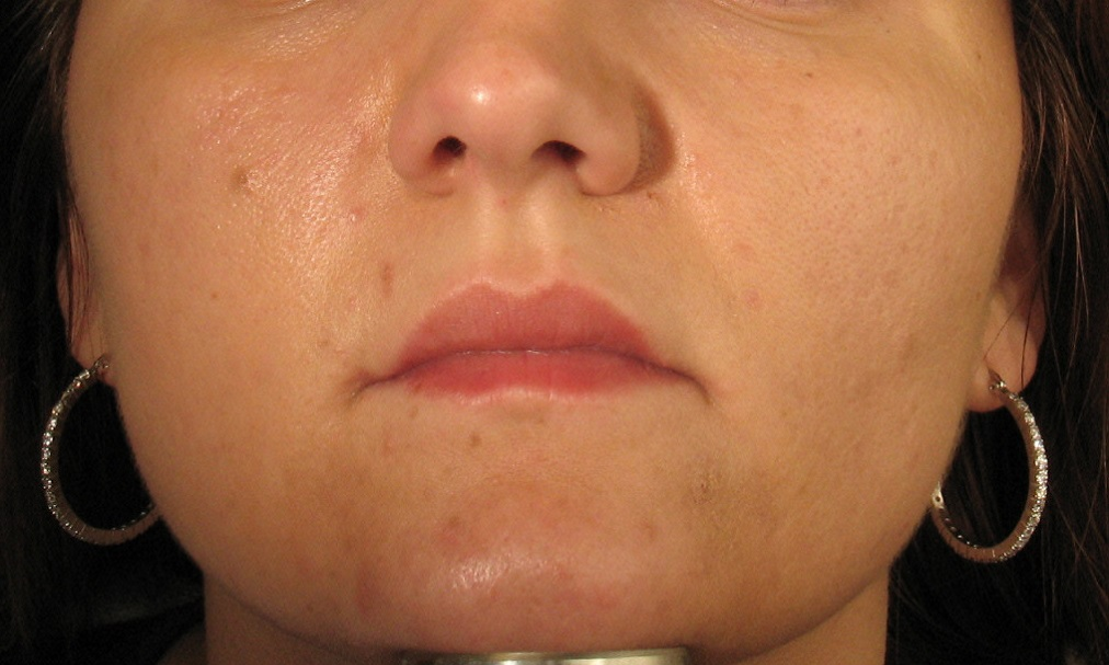 Before Acne Scar Treatment.