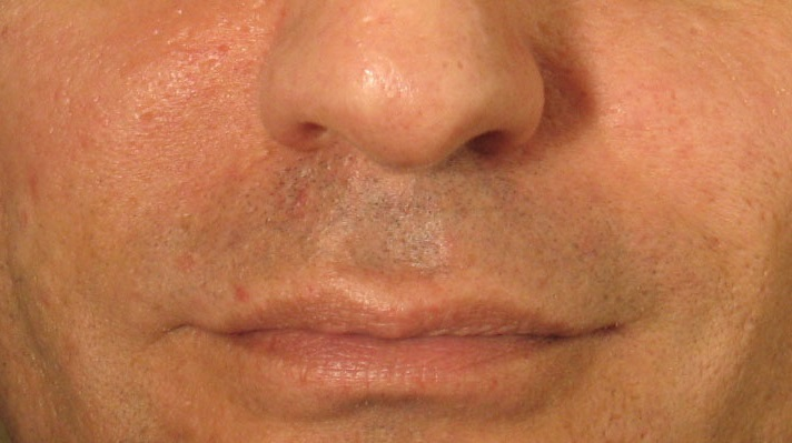 After PerlaneTreatment.