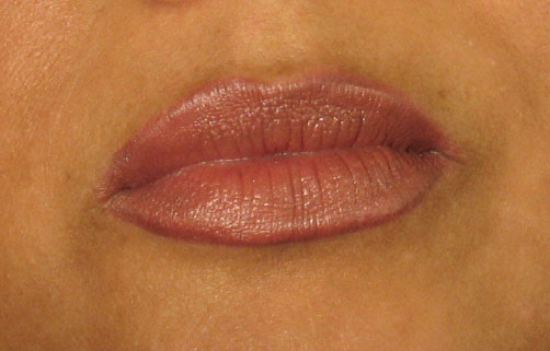 After Restylane Treatment.