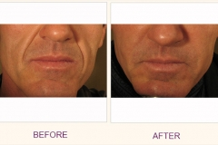Perlane Treatment Frown Lines