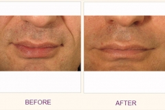 Restylane Treatment Frown Lines
