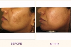 Wrinkle reduction with IPL