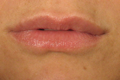 After Juvederm Treatment.